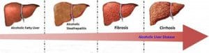 stage of liver damage